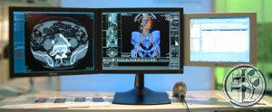 Radiologie-Informations-System (RIS), MEDOS